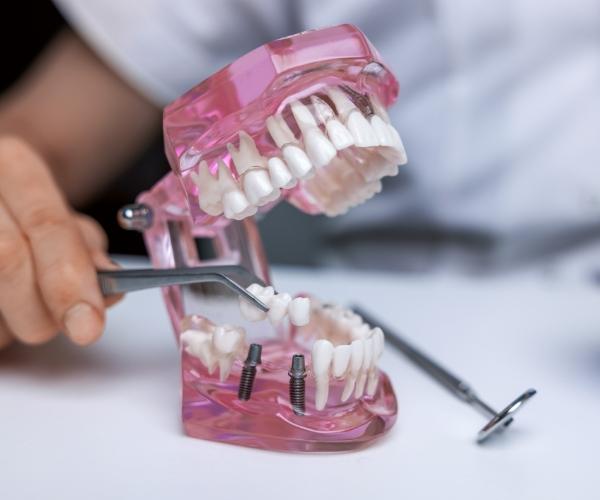model szczęki zimplantami zębów