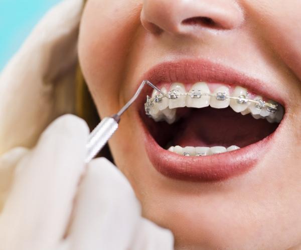 kobieta zaparatem ortodontycznym